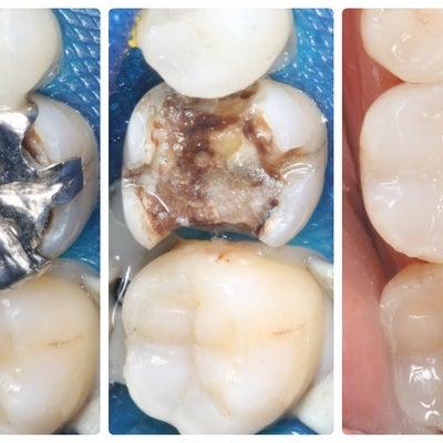 歯を失う前にの記事に添付されている画像