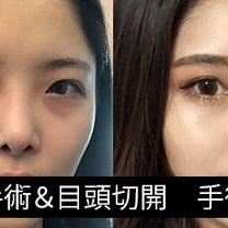 ソウルリスタリアルレポ 鼻再手術&目頭切開の記事に添付されている画像