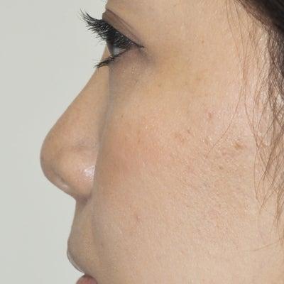 ヒアルロン酸による隆鼻術2の記事に添付されている画像