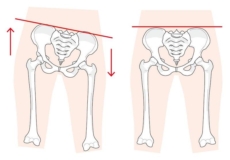 「膝 歪み」の画像検索結果
