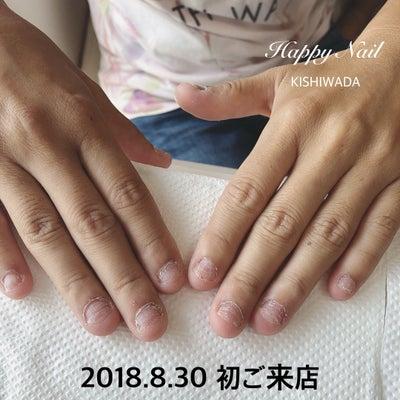 噛み爪矯正卒業before afterの記事に添付されている画像