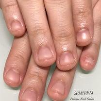 深爪矯正♡の記事に添付されている画像