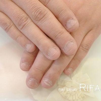 メンズ深爪矯正 完了 M.U様の記事に添付されている画像