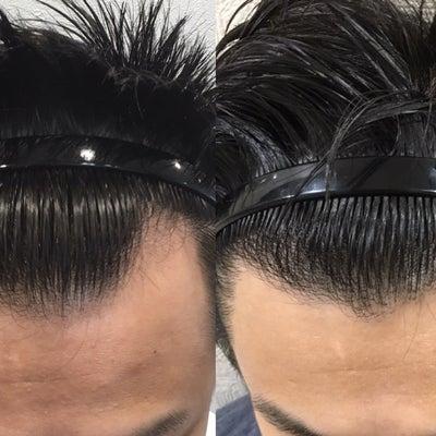 自毛植毛をして1年2か月経過 ※グロ注意の記事に添付されている画像