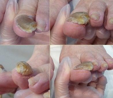 【母の爪が分厚く爪が切れないし、靴を履くと爪が痛いというので、爪のお手入れをお願いできますか?】とご相談をいただきました。