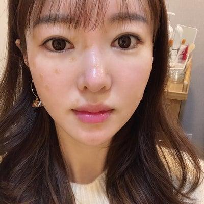 韓国美活レポ♪【レーザーおまかせ】が究極のレーザー治療だった!③の記事に添付されている画像