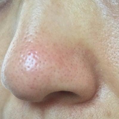 トレチノインで毛穴の開き・黒ずみはきれいになる!?効果ありの声を私の経過画像と一の記事に添付されている画像