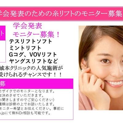 福岡院での上下口唇縮小の術後1か月です☆の記事に添付されている画像