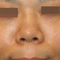 I型シリコンプロテーゼ+鼻中隔延長術+鼻尖縮小術+脂肪減量術:術後3ヵ月 浮腫のの記事に添付されている画像