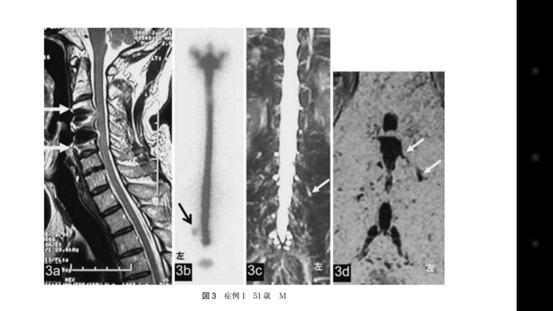 頸椎 硬 膜 外 膿瘍 脊髄腫瘍(硬膜外腫瘍)|日本脊髄外科学会