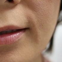 口の横にできるたるみジワは、脂肪溶解注射と、ヒアルロン酸注入で、改善できます。の記事に添付されている画像