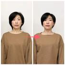 美容整体コースの変化②の記事より
