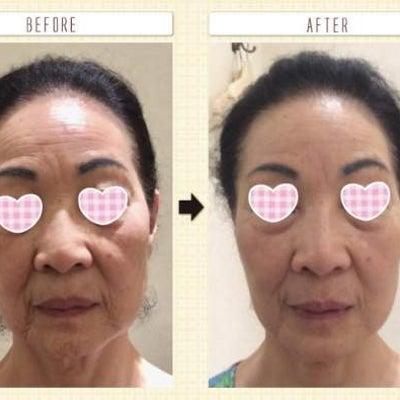 40代からの女性の顔のお悩みに。痛くない小顔矯正『小顔整顔』の記事に添付されている画像