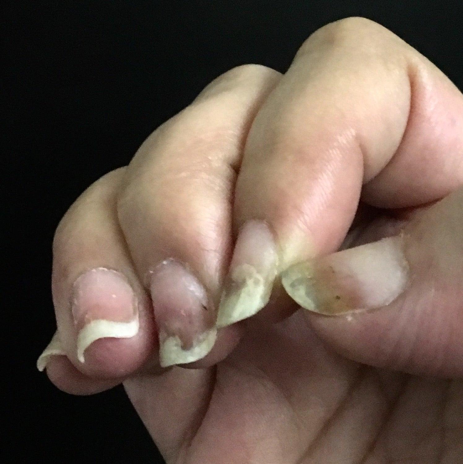 剥がれる 爪 内出血 白クマ先生の子ども診療所 日本医師会
