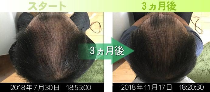 熊本AGA治療