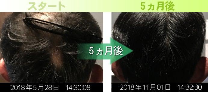40代男性薄毛治療発毛実績