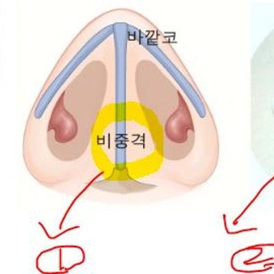 【GNG整形外科・鼻】曲がった鼻中隔を改善しなければならない理由とは?の記事に添付されている画像