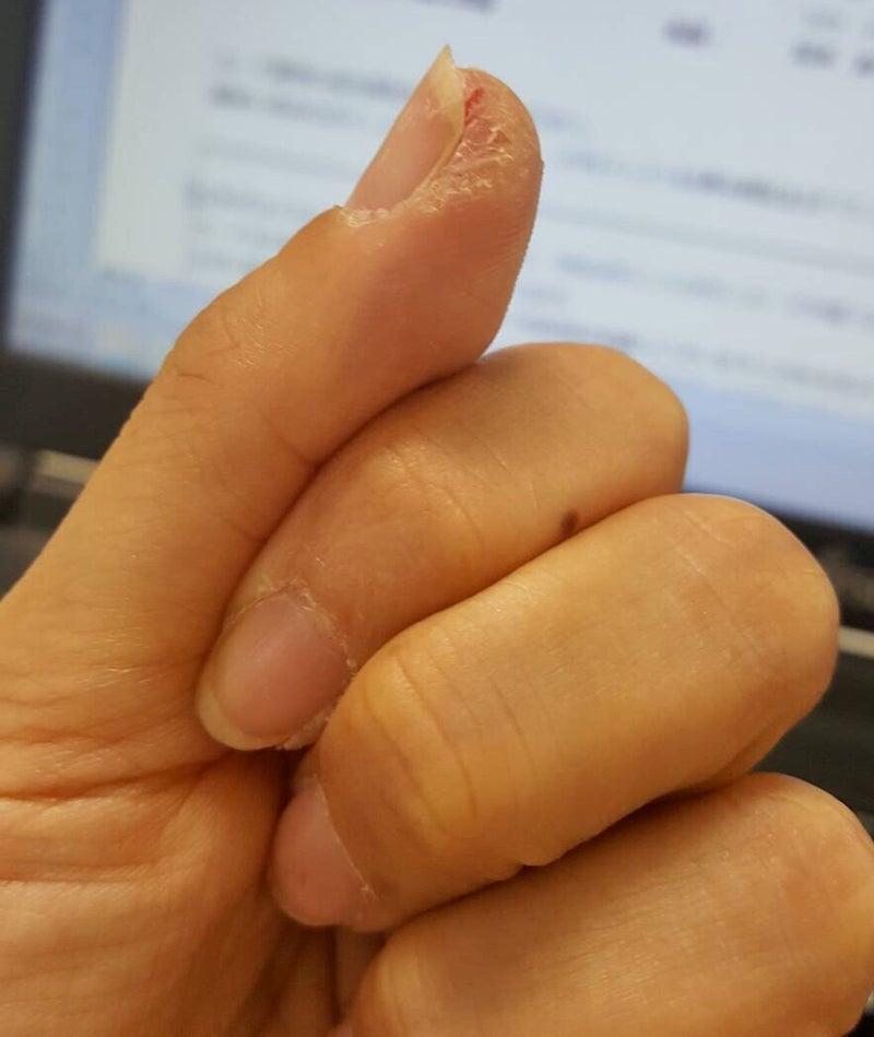 の 先 痛い 指 が