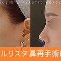 #鼻再手術の画像