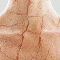 ☆保湿がバストの肉割れを解消する?!☆の記事に添付されている画像