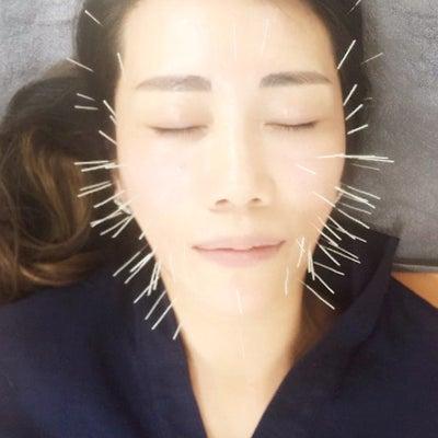 ソウル薬令市場で美容鍼(美顔鍼)を地元民価格で受けました!の記事に添付されている画像