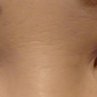 美肌アモーレ&眉下リフト~施術後約80日の記事に添付されている画像