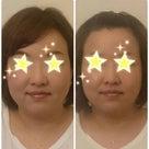 """""""顔筋リリースフェイシャル""""体験メニューのご案内の記事より"""