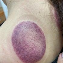 初めての鼻から汚血抜かれた瀉血治療 in ソウル薬令市場 韓医院の記事に添付されている画像