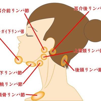 リンパの痛みと乳がんプラザ(江戸川病院の田澤先生)の記事に添付されている画像