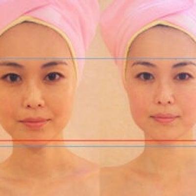 小顔矯正 モニター募集❗大幅割引❗の記事に添付されている画像