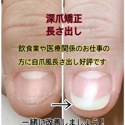 飲食業や医療系のお仕事の方に人気!自爪風深爪矯正!の記事に添付されている画像