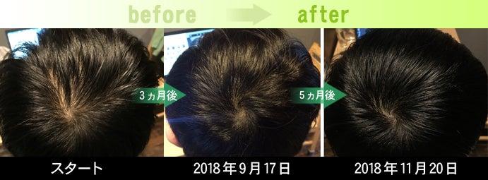 熊本AGA治療発毛実績写真