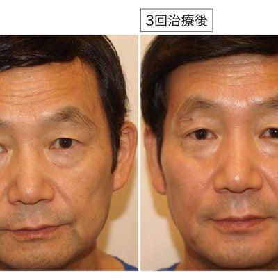 院長がピコレーザー「ピコシュア」で若返りました!!~大阪・心斎橋・ツツイ美容外科の記事に添付されている画像