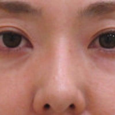 40代女性 手術しない目の下のクマ治療 1年1ヵ月後の経過の記事に添付されている画像