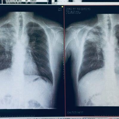 抗ガン剤2クール目とタバコの影響とスタンプーの記事に添付されている画像