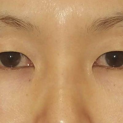 最新式切開美容施術・MD式(ミニマムダウンタイム式)眉下切開法の1例/SBCのスの記事に添付されている画像