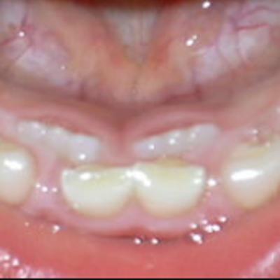 矯正中の子供の歯みがきには歯間ブラシ、ワンタフト、ブリアンが必須アイテムなんですの記事に添付されている画像
