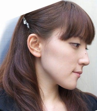 顎変形症 手術前 ビフォー 横顔 写真