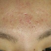 ニキビ痕凹み(クレーター)@額も最新治療でしっかり治りますの記事に添付されている画像