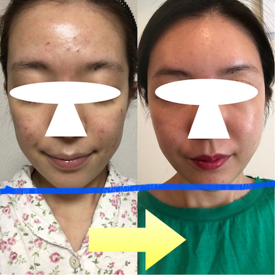 Dr. ビョン 輪郭整形 ★☆★ フィラーで面長から輪郭が変わった!の記事に添付されている画像