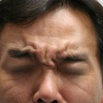 どんな眉間のシワでも適切な場所に注射すると、効果的ですの記事に添付されている画像