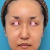 30代後半女性にイタリアンリフトを行い、頬のたるみをリフトアップした症例写真です。
