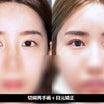 【韓国整形/韓国美容外科】 目の再手術&豊胸(症例あり)