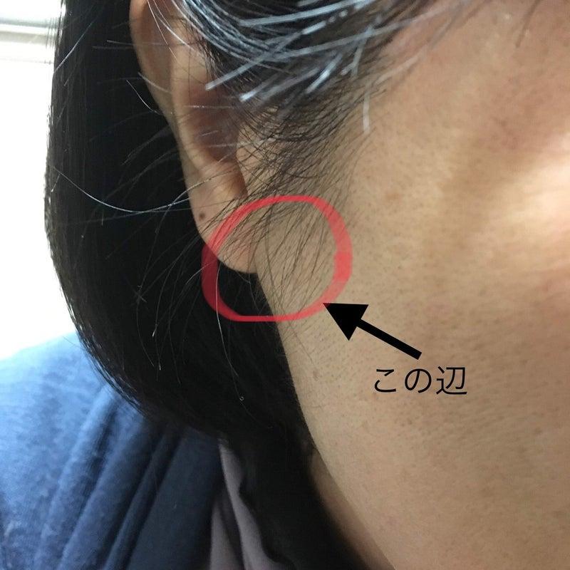 腫瘍 耳 下 腺