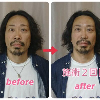 【京都府・宇治市からご来店】2回目の施術で小顔になってるわ~♪実感される40代男の記事に添付されている画像