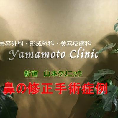 鼻修正症例集めました☆手術動画の記事に添付されている画像