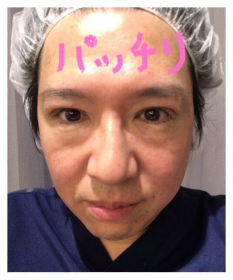 院長、眼瞼下垂症手術を受ける☆手術日☆
