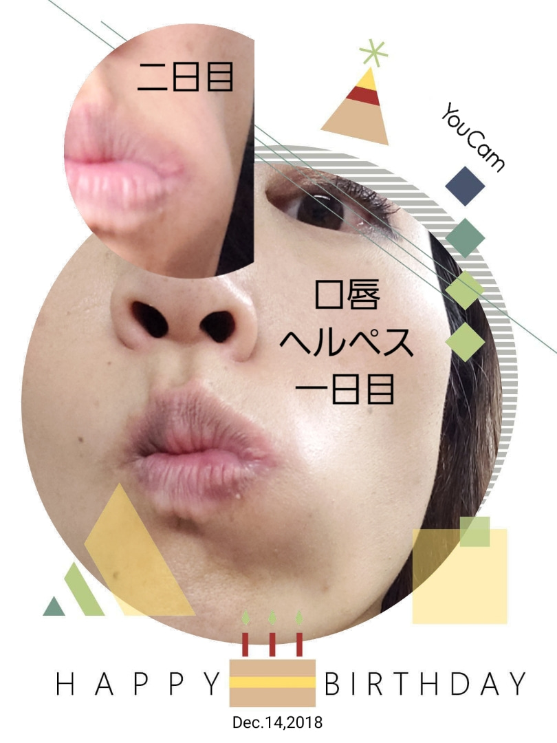 ヘルペス 口唇