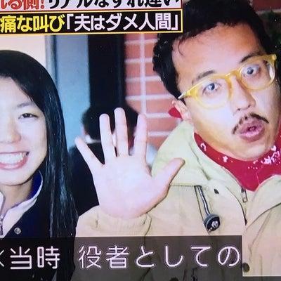 コント赤信号?小宮さんの妻、、無治療の記事に添付されている画像