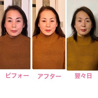 【三重県・伊賀市よりご来店】たるみスッキリ、リフトアップされ若顔になる小顔矯正~の記事に添付されている画像
